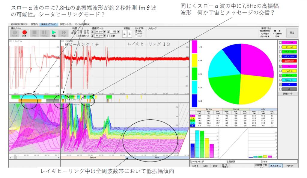 脳波測定結果グラフ